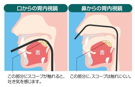経鼻内視鏡と経口内視鏡を選択できる